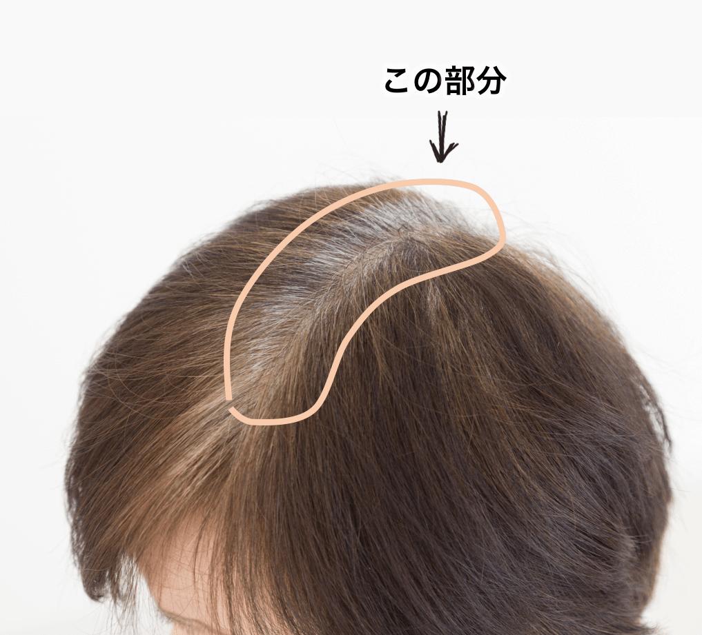 「白髪染めして1ヶ月経つと」の画像検索結果